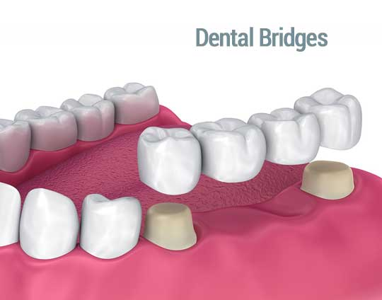Dental Bridges in Tijuana