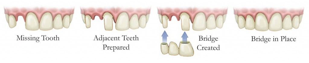 dental bridges procedure