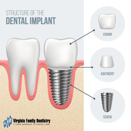 Implante Dental en Tijuana