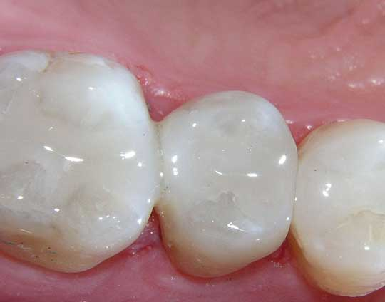 Dental Resins in Tijuana