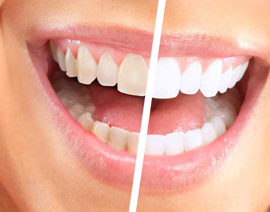 Teeth Whitening in Tijuana