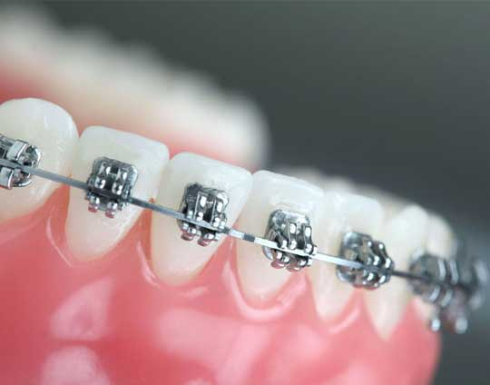 Dental Braces in Tijuana