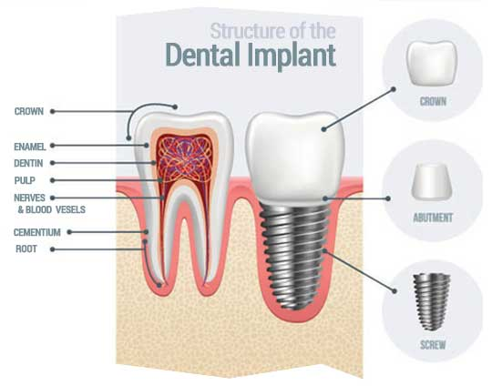 Implante Dental en Tijuana