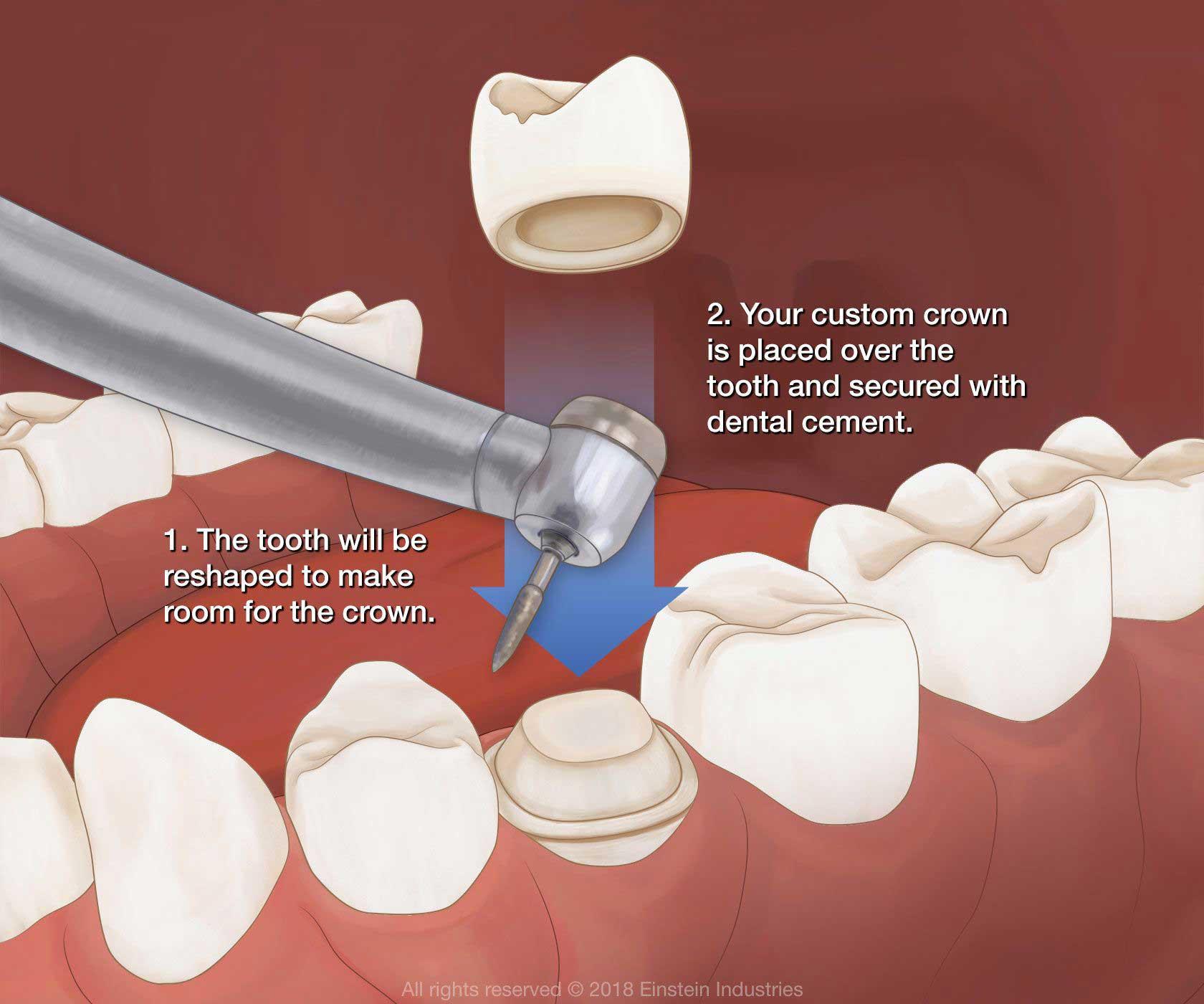 Porcelan Dental Crowns